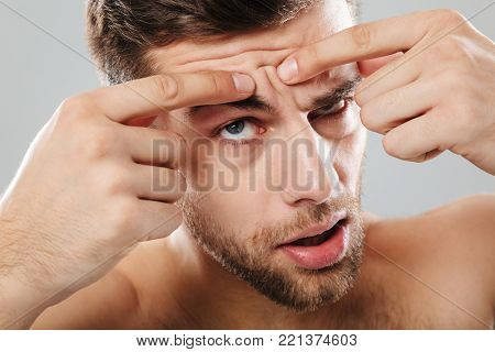 Close up portrait of a man squeezing pimples on his forehead isolated over gray background