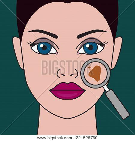 Pigment spot on female face under  magnifying glass. Vector illustration