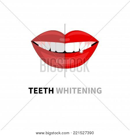 Teeth whitening before and after. Beautiful womans smile with white teeth. Vector illustration