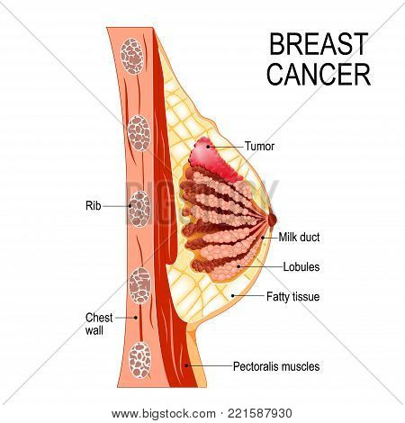 Breast cancer. Cross-section of the mammary gland with tumor. Human anatomy. Vector diagram for medical use