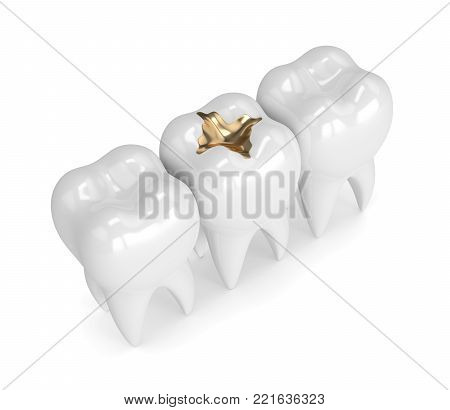 3D Render Of Teeth With Dental Gold Filling