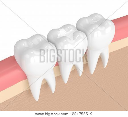 3d render of teeth with dental composite filling in gums