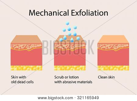 Mechanical Exfoliation Or Peeling, Vector Illustration On Light Background