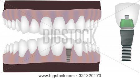 Dental Technician Dental Instrument Reconstruction Dental Technician Dental Instrument Reconstructio