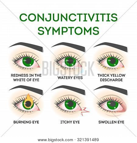 Conjunctivitis Symptoms. Pink Eye Disease, Infection And Allergy