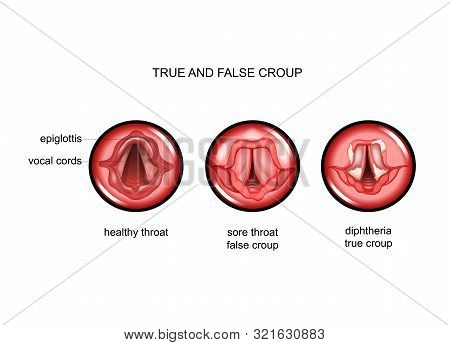 Vector Illustration Of Diphtheria. True And False Croup