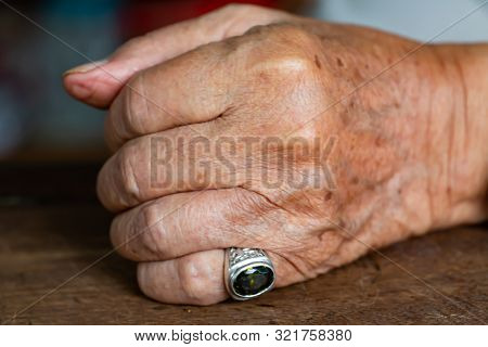 Senior Man's Left Hand In Fist On Wood Table Background, Mole And Blemish, Close Up & Macro Shot, Se