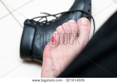 Bloody Terrible Blister On Human Feet With New Black Leather Shoes Laying Around. Wet Bloody Painful