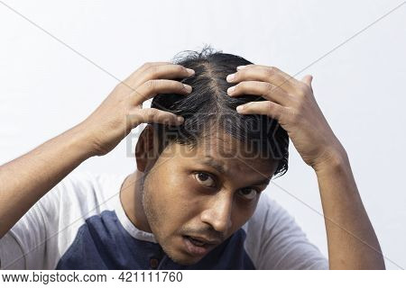 A Middle Aged Indian Man Is Looking At His Hair Fall With Surprised Face On White Background
