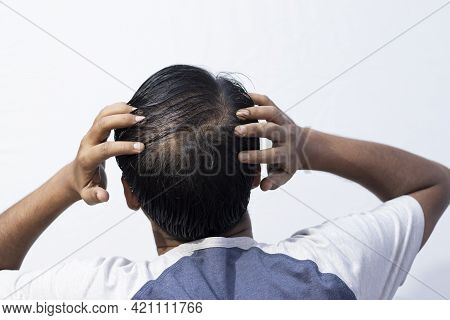 A Middle Aged Indian Man Showing His Hair Fall Back Facing On White Background