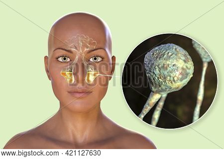 Mucor Fungi As A Cause Of Sinusitis, 3d Illustration. Inflammation Of Maxillary Sinuses And Close-up