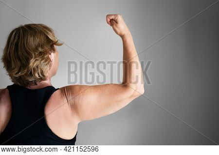 Overweight Lady Arm With Excess Fat. People Obesity
