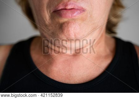 Face With Double Chin And Excess Fat