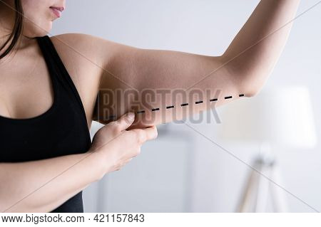 Arm Cellulite Surgery And Liposuction. Showing Healthy Skin