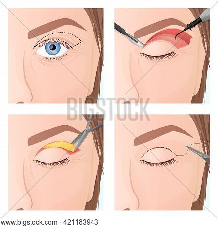 Upper Eyelid Plastic Surgery Procedure, Step By Step Process