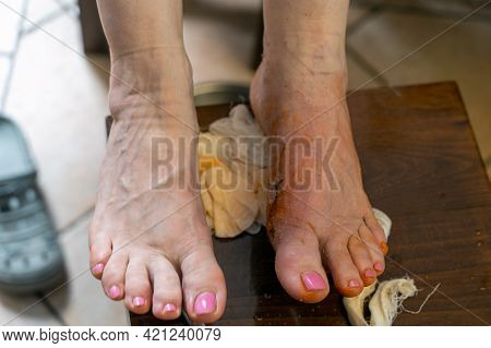 Two Bare Woman Feet, One With Horrible Scar After Trauma Or Surgery. Result Of Tight Shoes, Deformit