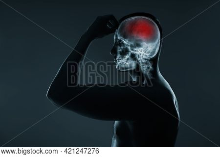 X-ray Of A Man's Head. Medical Examination Of Head Injuries. Cerebral Stroke. Brain Damage Is Highli