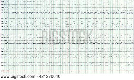 Photography Of Human Electroencephalograhy Of Epileptic Patient Showing Sharp Wave During  No Seizur