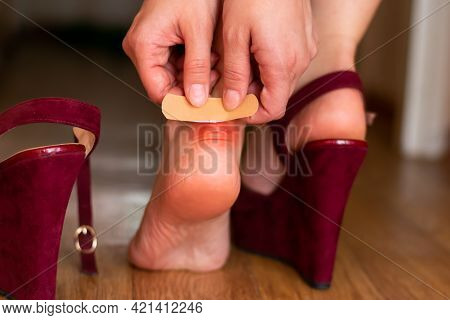 Young Woman Hands Are Putting Band Aid On Red Sore Spot Callus Because Of Uncomfortable Shoes. Adhes