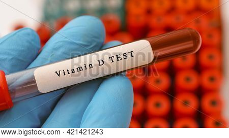 Vitamin D  test result with blood sample in test tube on doctor hand in medical lab