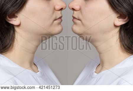The Woman Has A Double Chin. Chin Reshaping, Fat Removal, Lifting. Collage Comparison Before And Aft