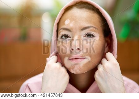 Black African American Woman With Vitiligo Pigmentation Skin Problem Indoor Dressed Pink Hoodie Put