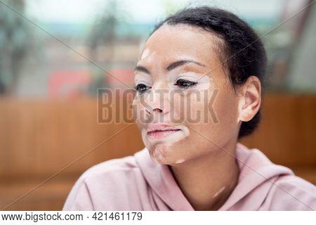 Black African American Woman With Vitiligo Pigmentation Skin Problem Indoor Dressed Pink Hoodie Clos