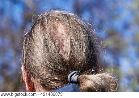 The Back Of The Head With The Hair Tied Into A Ponytail And A Beginning Bald Spot. Close Up