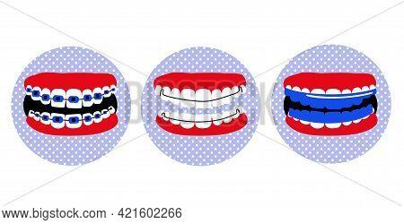 Dental Braces, Essix Aligner Or Orthodontic Hawley Retainer On Teeth.poster In Pop Art Style.oral Ca