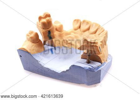 Model Of Tooth Prothesis