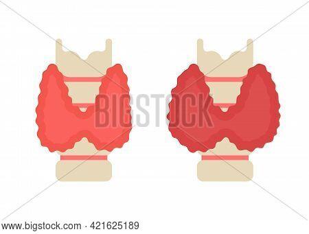 Thyroid Gland Healthy And Sick Increased. Check Health Thyroid Organ. Hypo Or Hyperthyroidism, Pain,
