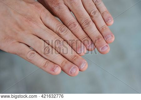 Close Up Detail Of Two Hands With Bitten And Ugly Nails