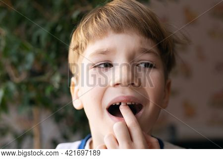 Scared Little Boy Showing Wobbly Baby Tooth In His Mouth On Blurry Background Of Apartment.