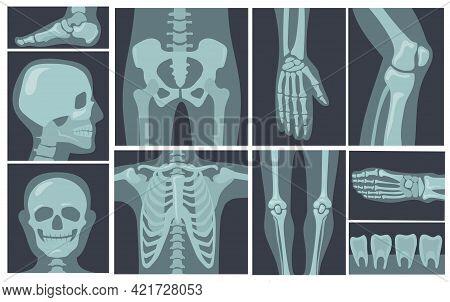 X-ray Shots Of Human Body. Cartoon Vector Illustration. X-rays Of Pelvis, Chest, Knees, Feet In Blac