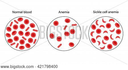 Normal Blood, Anemia And Specimen With Sickle Anemia. Human Blood Cells Structure. Thrombocytes, Leu