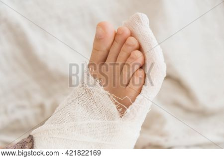 Broken Leg. Close-up Of The Cast On The Feet. Exercises To Repair And Strengthen Muscles. Damage To