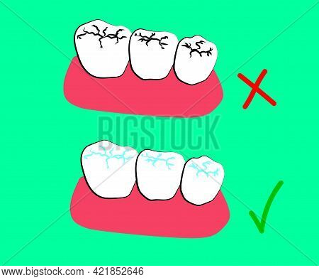 Human Molars. Caries And Filling. Cartoon. Vector Illustration.