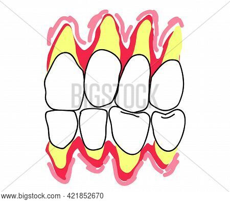 Human Teeth Defect. Exposure Of The Neck Of The Tooth. Cartoon. Vector Illustration.
