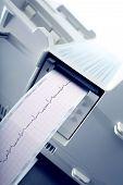 Cardiogram recording. The proccess of recording the ECG poster