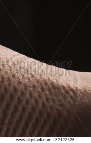 Deformation Skin After Bondage Of Submissive Woman / Bdsm Theme