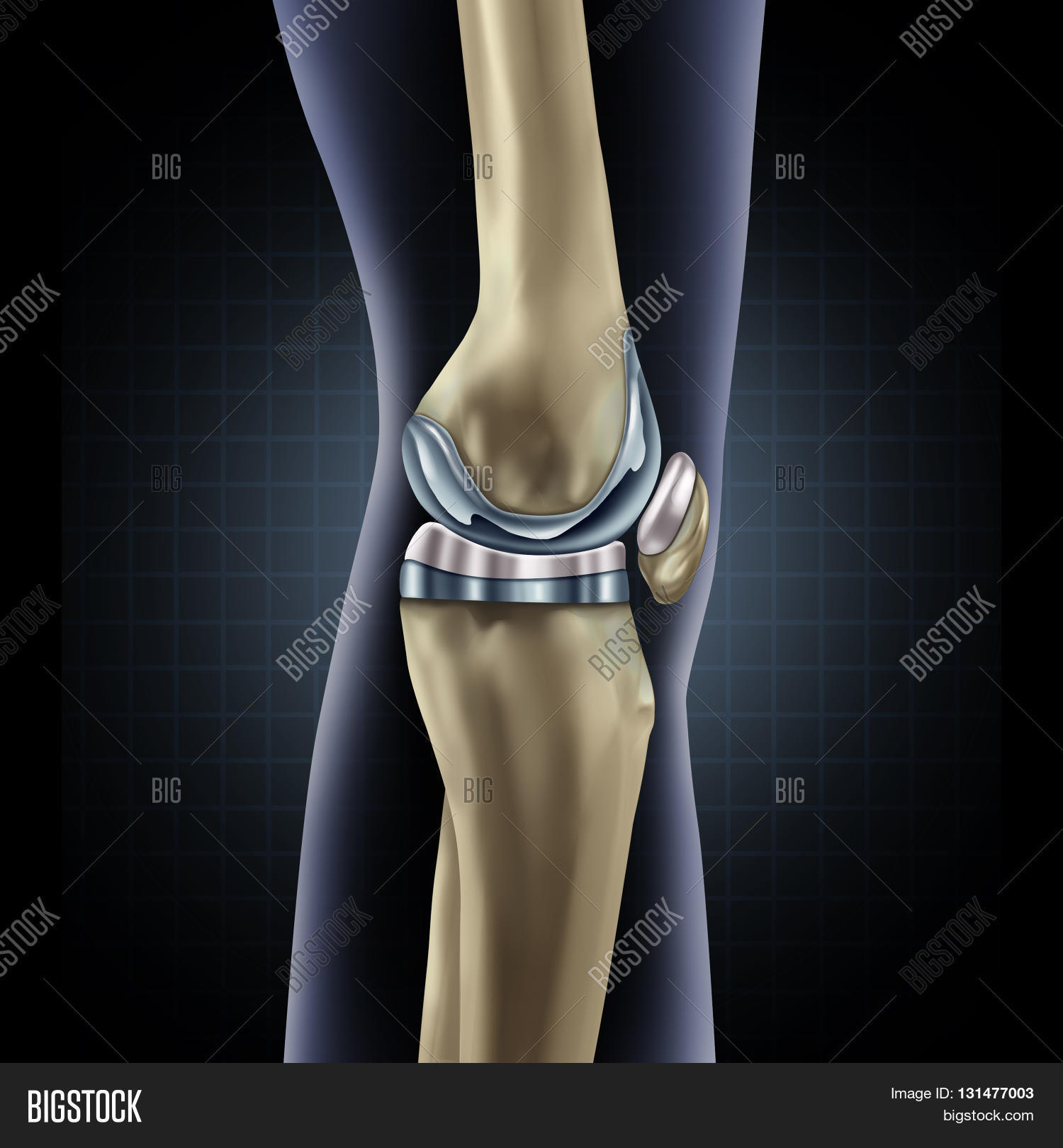 Knee Replacement Image Photo Free Trial Bigstock