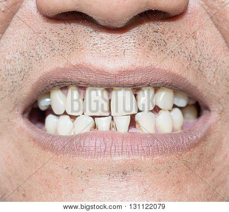 Bad teeth smoker select focus labia smile Bad teeth sick
