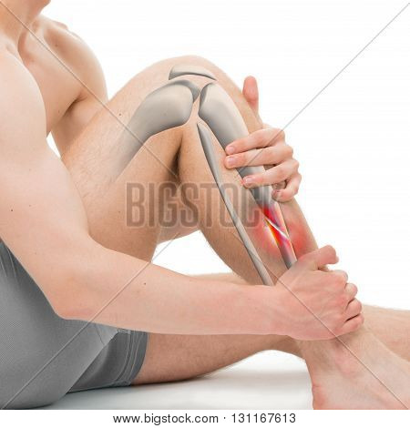 Oblique Fracture Of The Tibia - Leg Fracture 3D Illustration