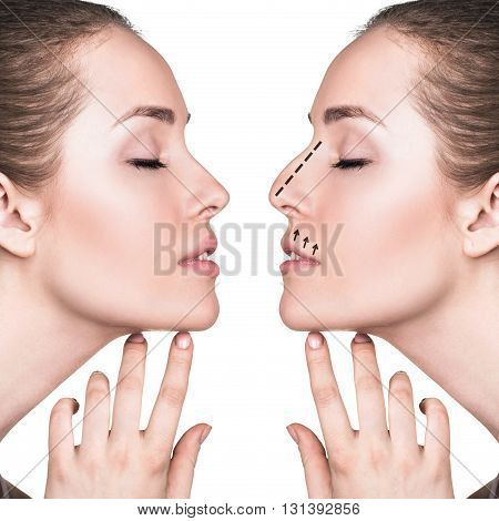 Female face before and after cosmetic nose surgery isolated on white