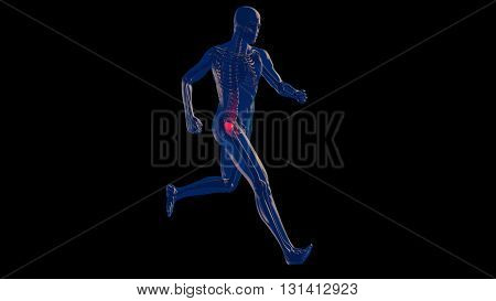 Thigh Femoral Head And Neck Pain In Human Body Transparent Design