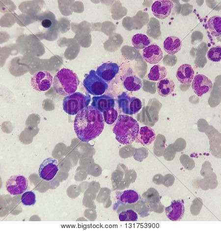 Erythrocytes, leukocytes and thrombocytes in sternal bone marrow smear