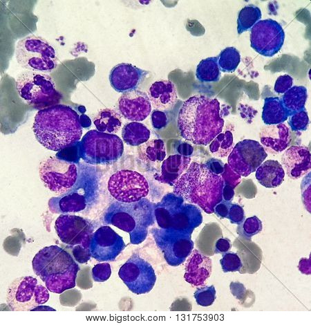 Erythrocytes, normoblasts, leukocytes and thrombocytes in sternal bone marrow smear
