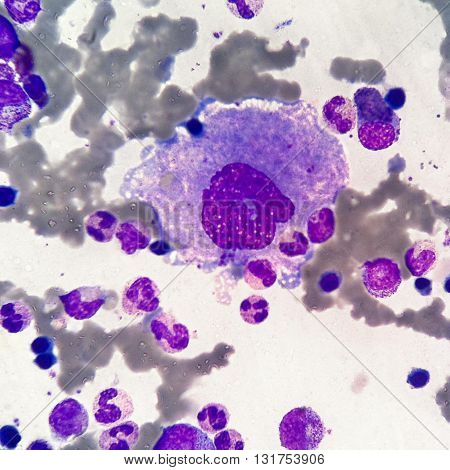 Erythrocytes, normoblasts, leukocytes, megacaryocyte and thrombocytes in sternal bone marrow smear