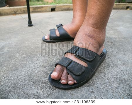 The Feet Of Man With Diabetes, Dull And Swollen. Due To The Toxicity Of Diabetes. Foot Swelling Caus