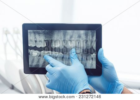 Intelligent Dentist Showing Teeth X-ray On Tablet, Well-built Man In Green Mask And Blue Gloves Expl